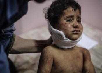 FOTO: Rat u Siriji (DPA/PIXSELL)